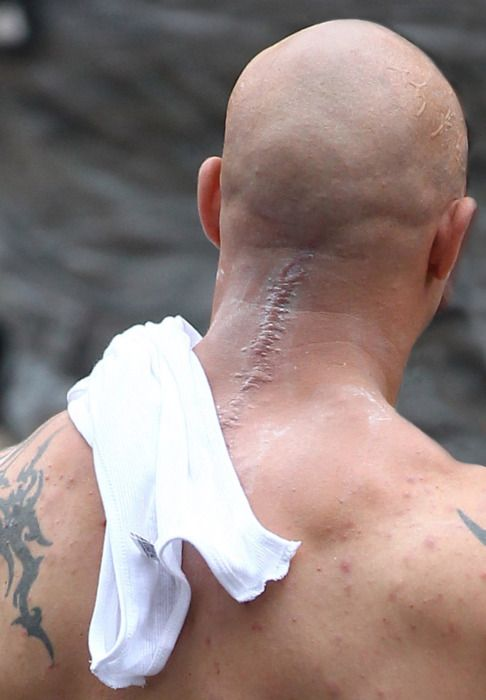 Banes Neck Scar in <strong><em>The Dark Knight Rises</em></strong>